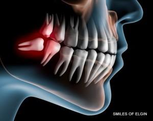 elgin wisdom tooth extraction